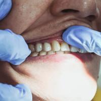 Зубное протезирование, виды