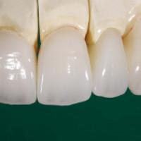 Восстановление зубов коронками из циркония